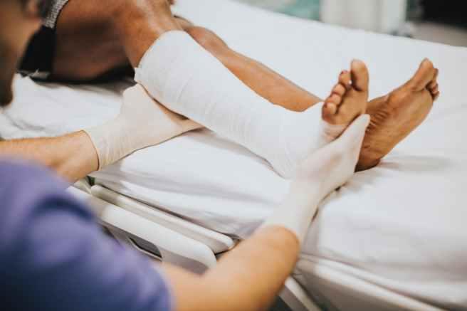 Ein Arzt gipst ein Bein ein